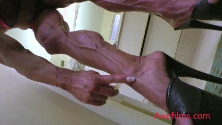 Angela Salvagno crazy vascular veins